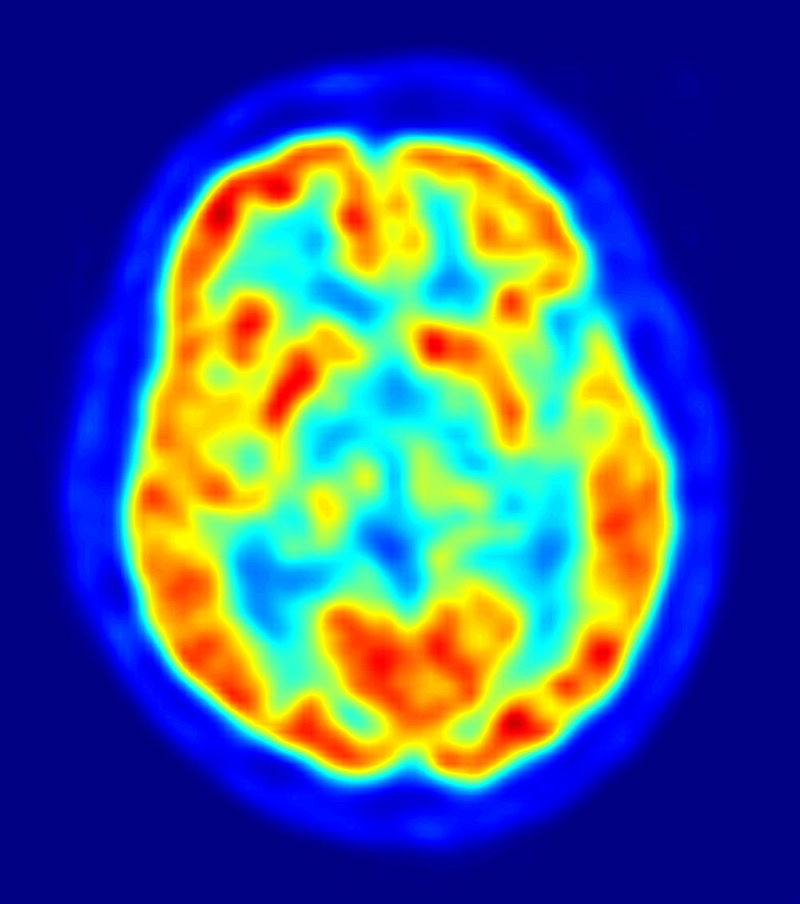 Vedere axiala a creierului la tomografie prin emisie de pozitroni. Autor JensMaus, sursa Wikipedia.