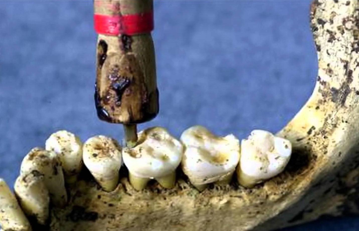 Dentiştii preistorici utilizau tehnici sofisticate